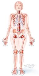Las enfermedades músculo esqueléticas como motivo de consulta en el primer nivel de atención.
