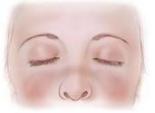 El Lupus Eritematoso Sistémico (LUPUS)