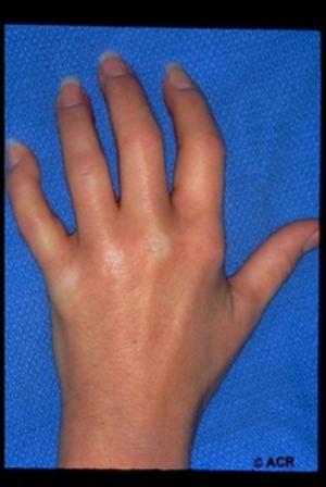 Esclerodermia  (También Conocida Como Esclerosis Sistémica)
