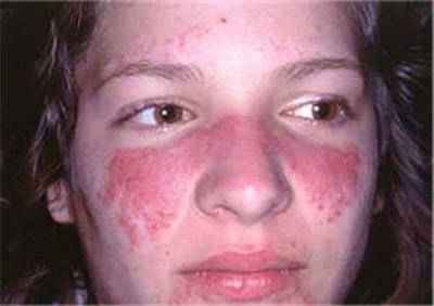 solo-lupus